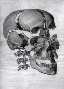 cranio esploso