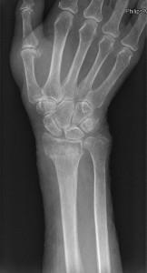 radiografia rottura radio ulnare